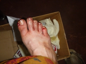 The aftermath: bloody toes.